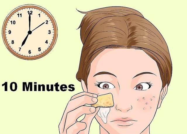 Step 4 Treating Acne With Banana Peels