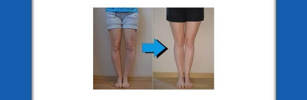 Bow leg and knock knee strenghtening without surgery