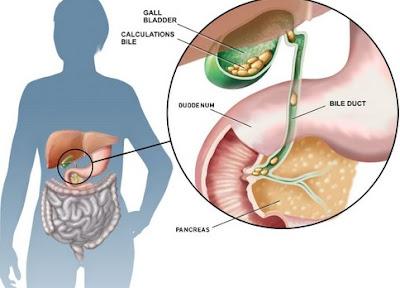 Penyebab Kanker Saluran Empedu atau kanker kandung Empedu