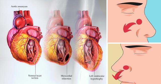 semne periculoase ale hipertensiunii