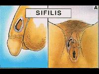 Resiko Menggunakan Celana yang Sama pada Penderita Sifilis
