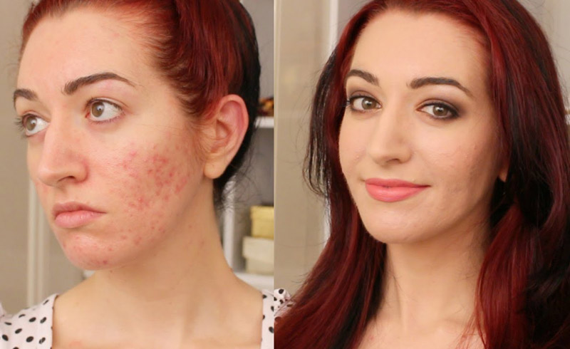 How to Cover up Breakouts with Makeup