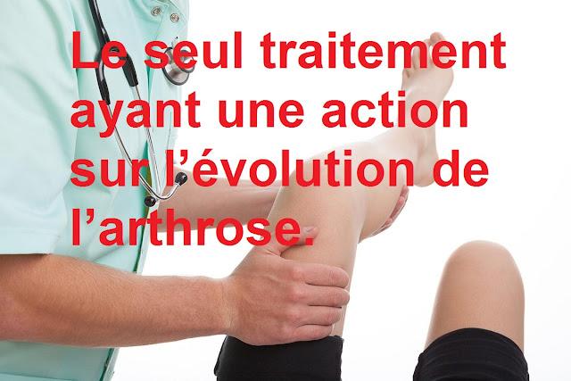 traitement-ayant-action-évolution-arthrose