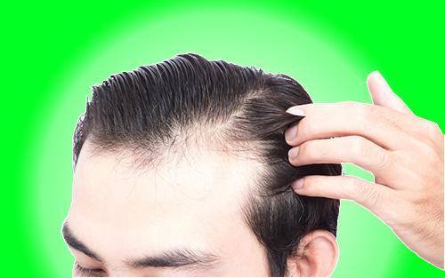 نصائح مهمة لم تسمعها من قبل للحد من تساقط الشعر