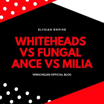 PERBEZAAN ANTARA WHITEHEADS, MILIA DAN FUNGAL ACNE: CARA MENGATASI