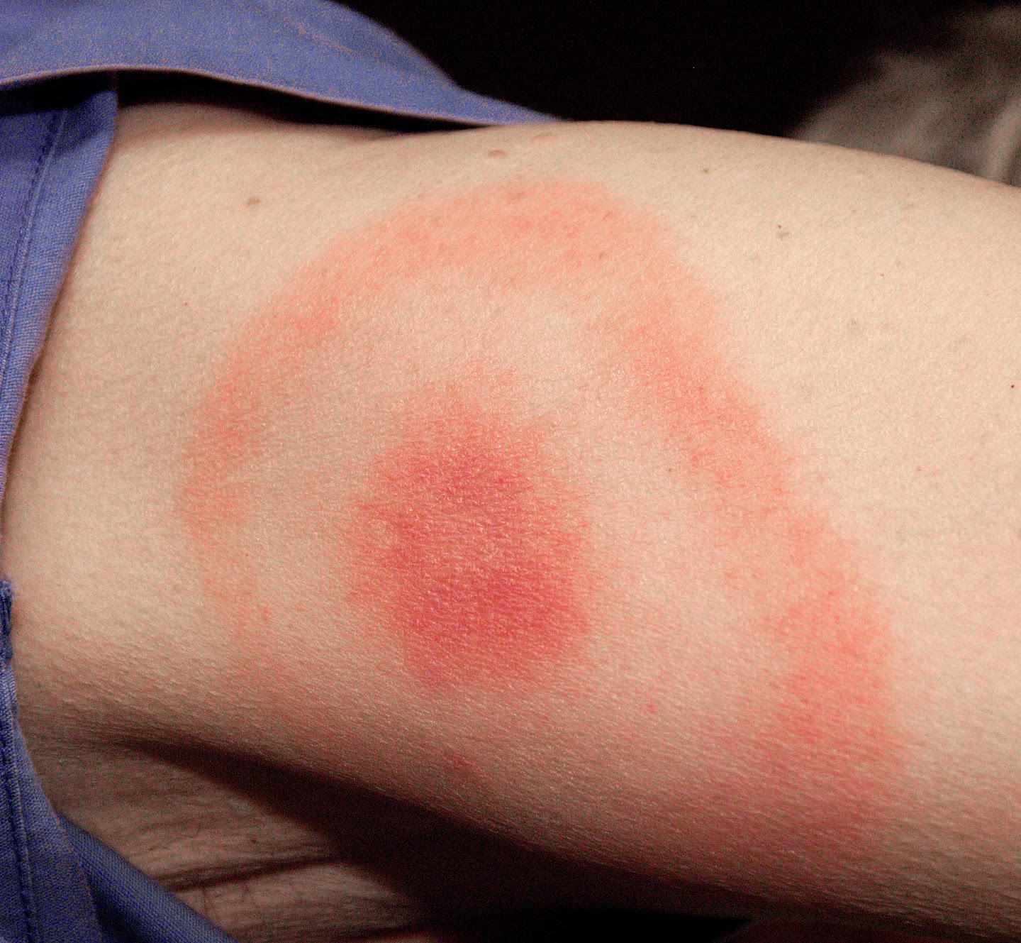 Lyme Disease bulls eye rash