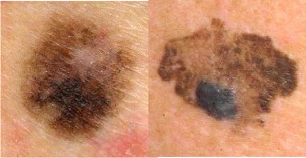 skin cancer early stages with pictures - Cancer Blog