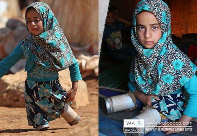 Viral! Gadis Kecil Suriah Berkaki Kaleng Sarden, Berikut 6 Fakta dan Videonya yang Bikin Nangis
