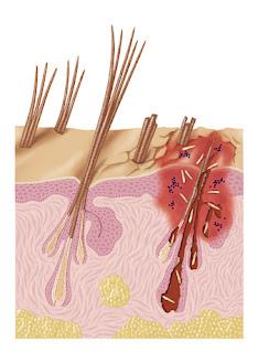Demodex canis se razvija u dlačnim folikulima Panvet veterinarska ambulanta Subotica