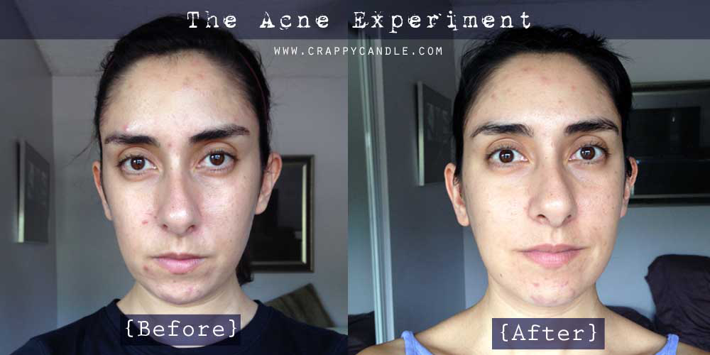I Didn't Wash My Face for a Month (Before and After) | The Acne Experiment
