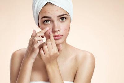 Saiba o que desencadeia acne na fase adulta