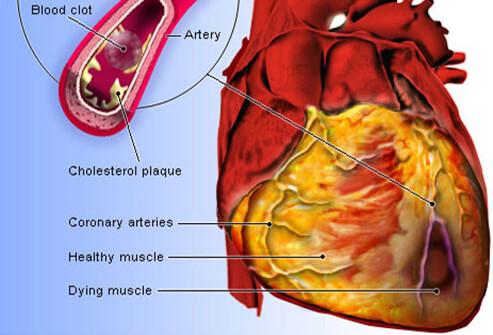 cara-serangan-jantung