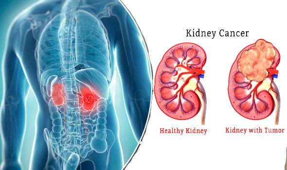 7 Early Warning Signs That Cancer Is Growing Inside Your Kidney