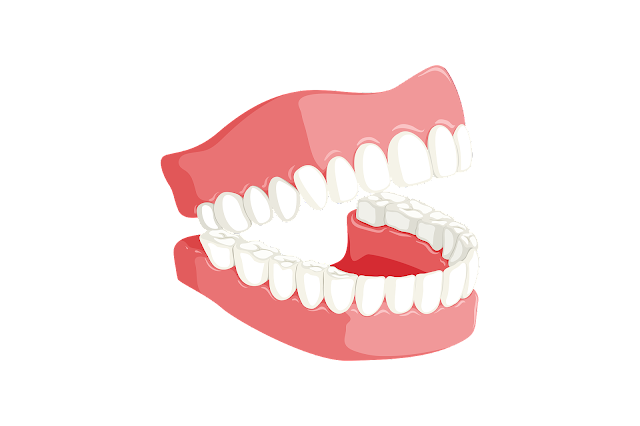 How to Whiten Teeth - RictasBlog