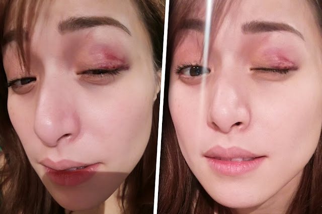 SHOCKING: Cristine Reyes Got Bruises On Her Left Eye After Getting Kicked in the Face!