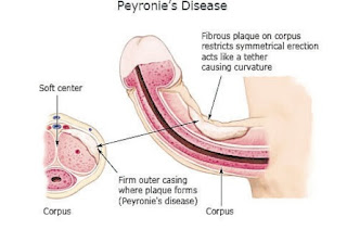 peyronies treatment