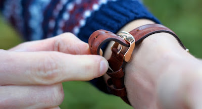 solusi akibat iritasi jam tangan