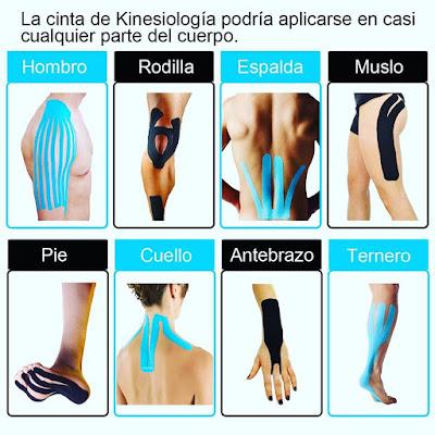 cinta kinesiologica, cinta de kinesiologia, kinesio, kinesiotape, cinta de colores, deporte, lesiones, dolor,
