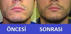 sakal ekimi resimleri fotoğrafları