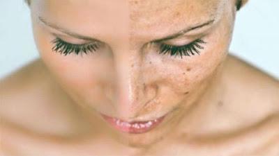 Cara Menghilangkan Flek Hitam Di Wajah Serta Pipi Dan Hidung Yang Membandel