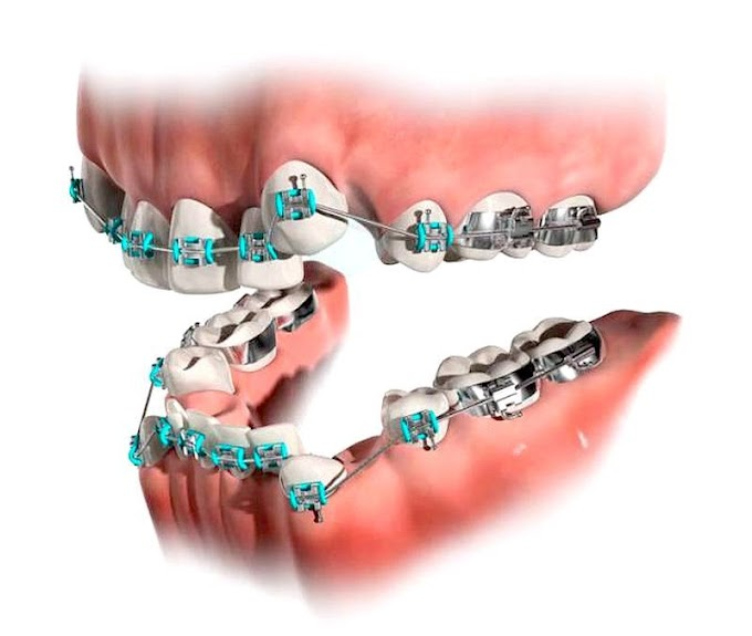 PDF: Frequency of orthodontic extraction