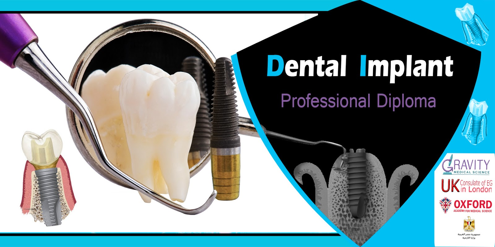 Gms Academy For Medical Training: Implant Dentistry