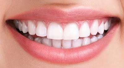 Blanchiment naturel des dents sans passer par le dentiste