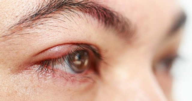 Home Remedies For Eyelid Inflammation (Blepharitis)
