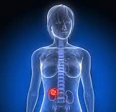 Kidney Cancer Symptoms and Signs with Pictures or Symbol