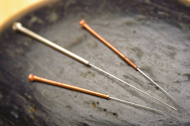 Interested In Acupuncture?