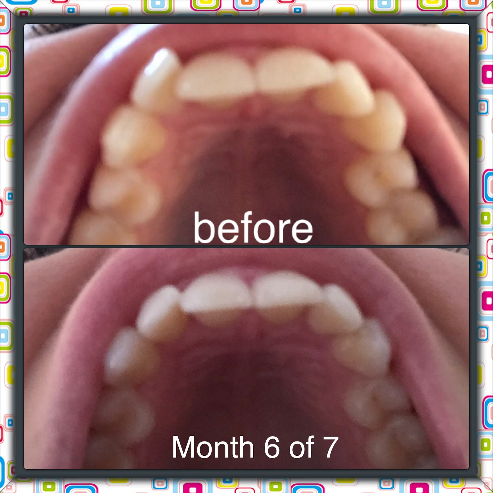 Measurements Of Smile Direct Club Clear Aligners