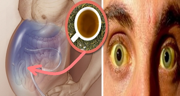Cirrhosis with ascites was cured by drinking this tea only!