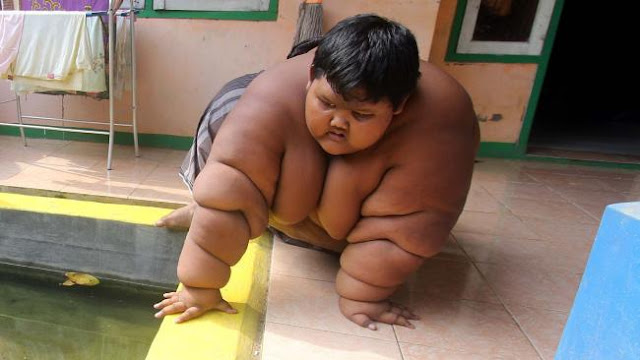 A ten-year-old has been named the world's fattest child, weighs 192