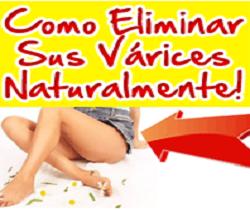 El Único Sistema Natural, Seguro y Sin Dolor Que Le Garantiza Que Las Várices No Volverán!