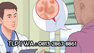 Solusi Ampuh Menyembuhkan Penis Lecet Perih Terdapat Nanah
