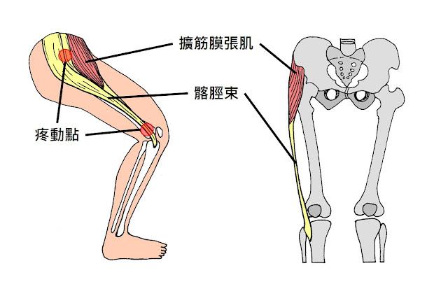好痛痛 髂脛束症候群 ITBS Iliotibial Band Syndrome 跑者膝 慢跑 長跑 單車