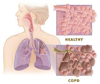 Penyebab Dan Cara Mengobati Bronkitis