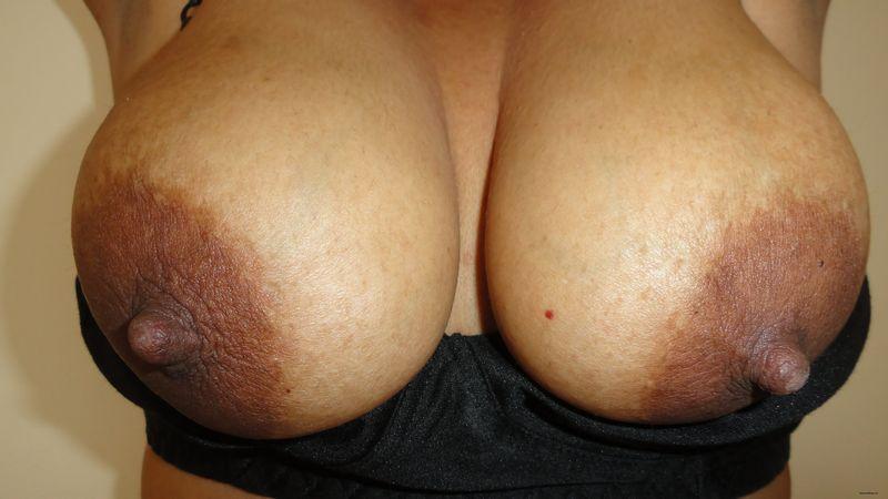 huge puffy nipples