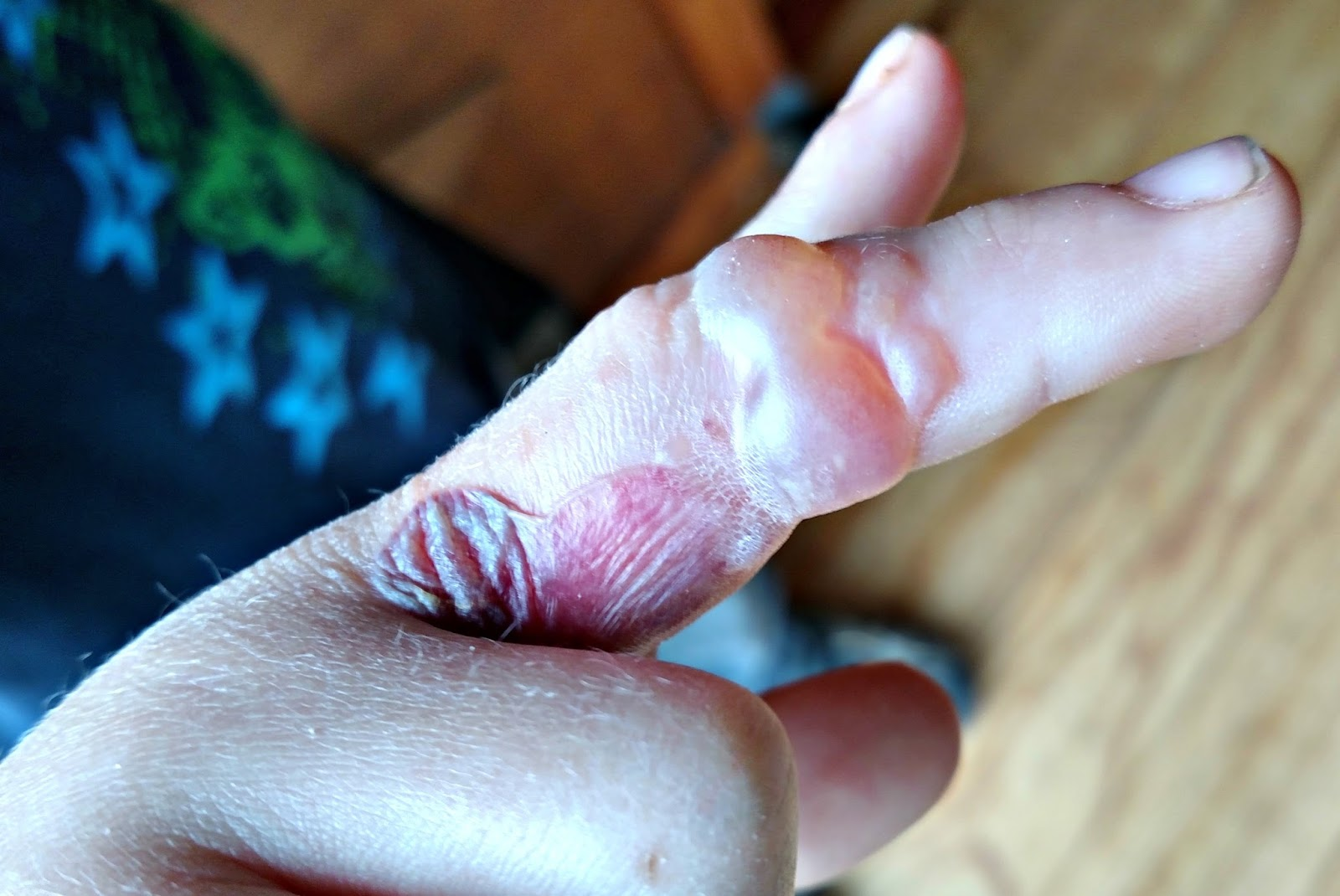 how to bring down swelling from bee sting