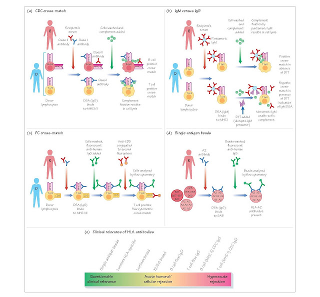Detecting HLA Antibodies