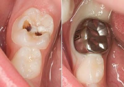 giá răng sứ rẻ nhất là bao nhiêu -7