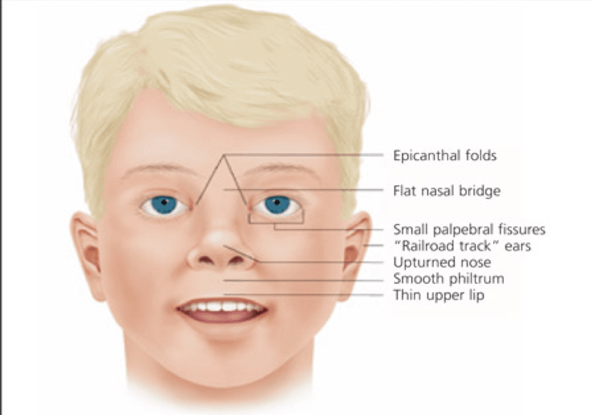 waardenburg syndrome Abstract auditory-pigmentary syndromes are caused by physical absence of melanocytes from the skin, hair, eyes, or the stria vascularis of the cochlea.