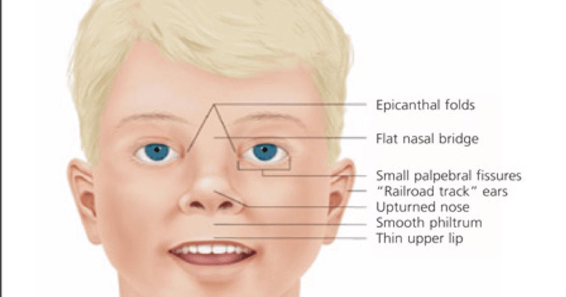 Waardenburg Syndrome waardenburg syndrome f...