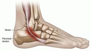paroneal tendon