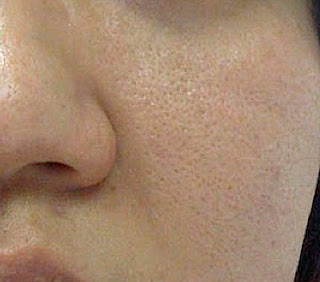 how to reduce large open pores on face in urdu