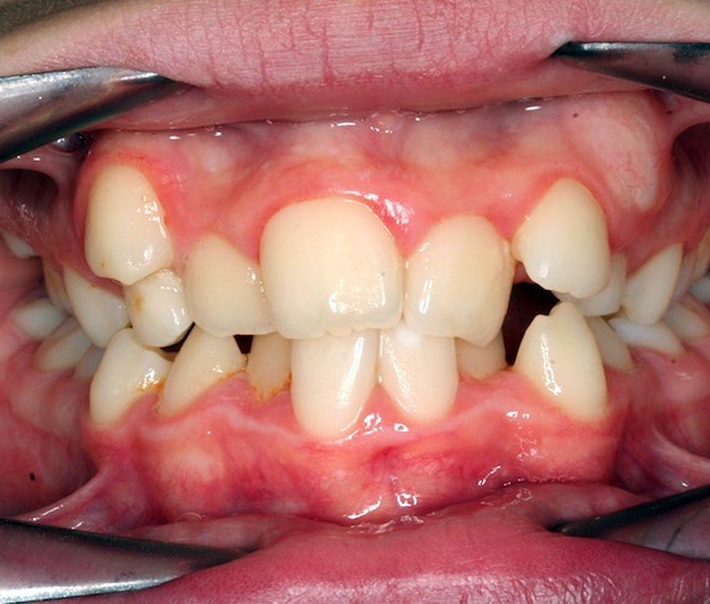 Dentes Mal Alinhados