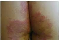 Salep Obat Gatal Eksim atau Gatal Alergi Pada Bokong Atau Pantat