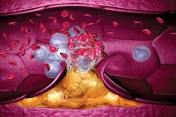 тромбы в кровеносных сосудах