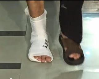 plester perban eko gips untuk kaki