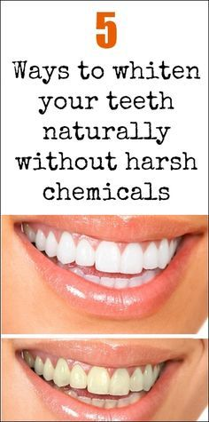 5 Ways to Clean teeth Naturally